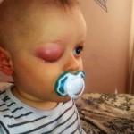 Tomus Cieciorko w trakcie leczenia (2)